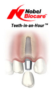 Teeth-in-an-Hour