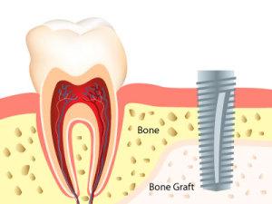 bone graft for dental implants
