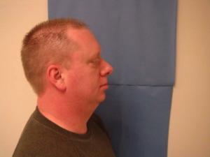 Before Maxillomandibular
