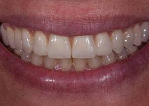 dental_implants_after
