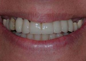 dental_implants_before1
